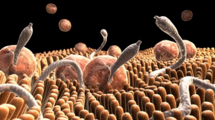 câte tipuri de viermi la om