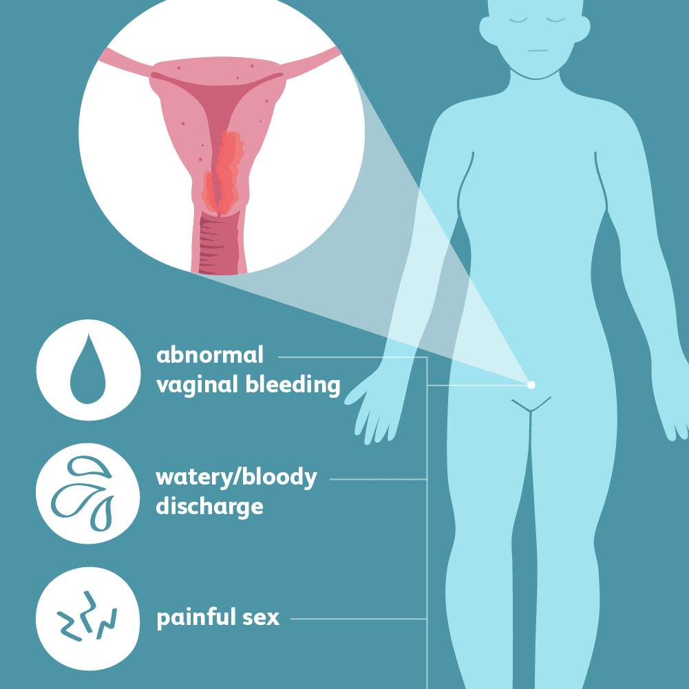 endometrial cancer in premenopausal