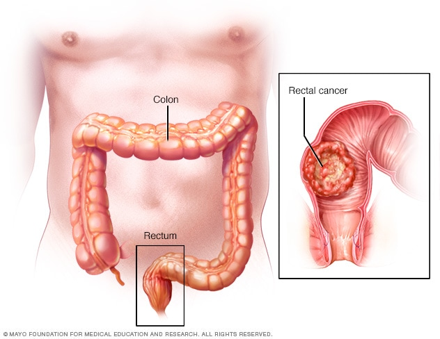 cancer colon sintomas)