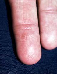 hpv virus common warts