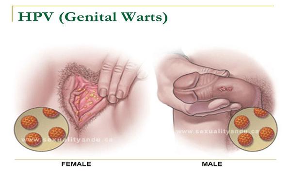 human papillomavirus external genital warts