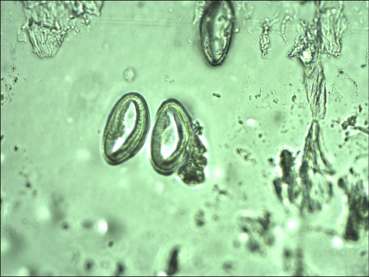 enterobius vermicularis glista