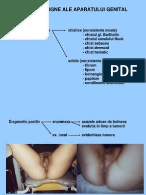 metoda chirurgicală genitală a condilomului