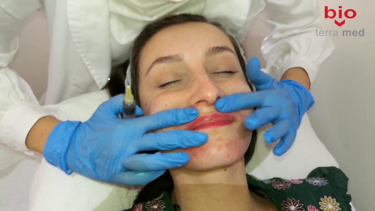 tratamentul papilomului aluniței)
