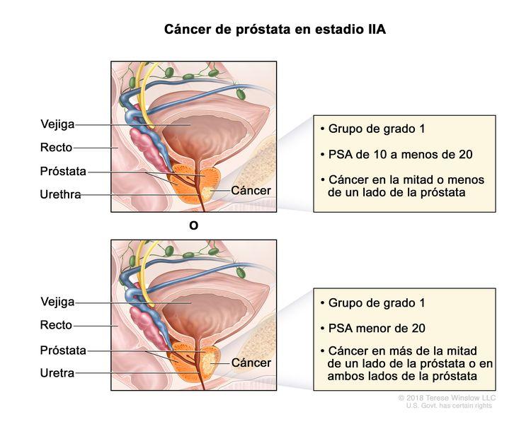 Cancer de prostata estadio 4 - PSA e Cancer de prostata sirop paraziti secom