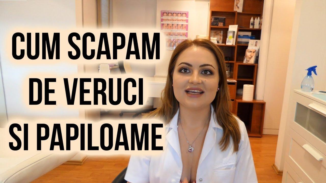 Ce este papilomavirusul uman (HPV) la femei?