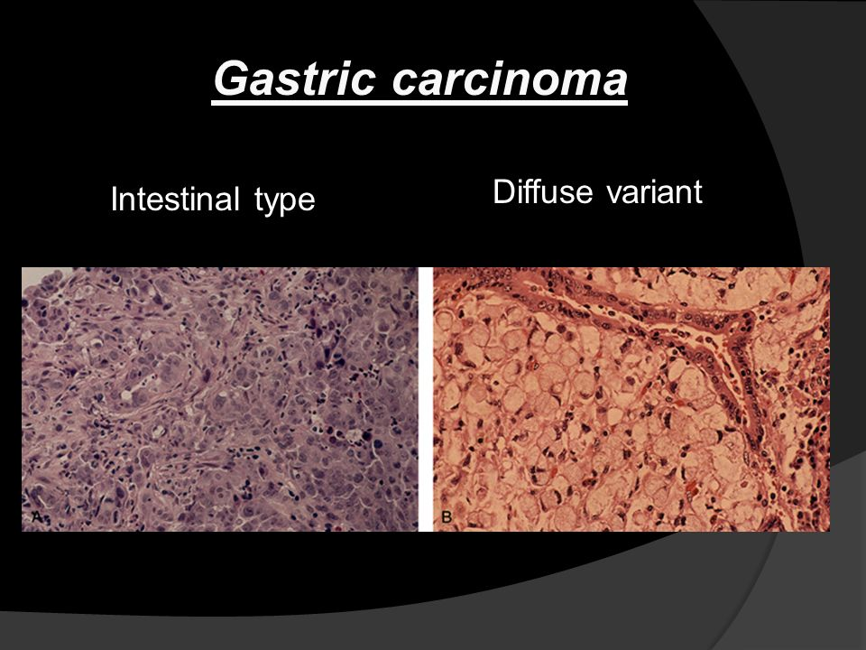gastric cancer diffuse type)