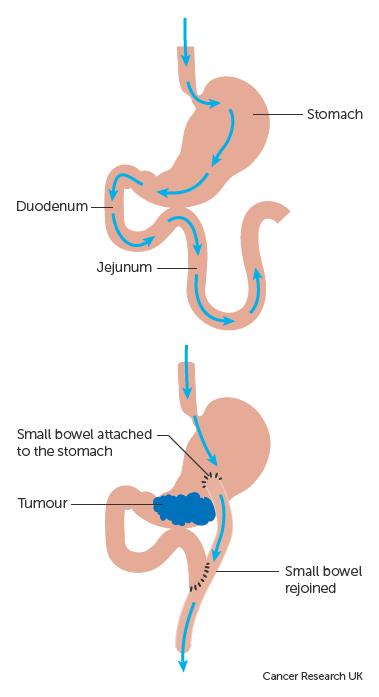 que es papiloma subungueal tratamentul viermilor din sfera umană