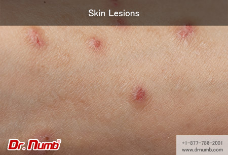 hpv and skin lesions)