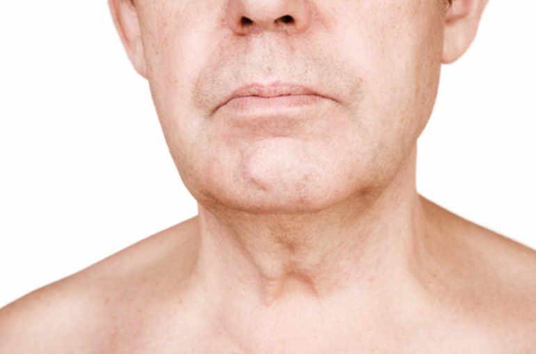 Papillomavirus cancer de la gorge Anemie tratament rapid