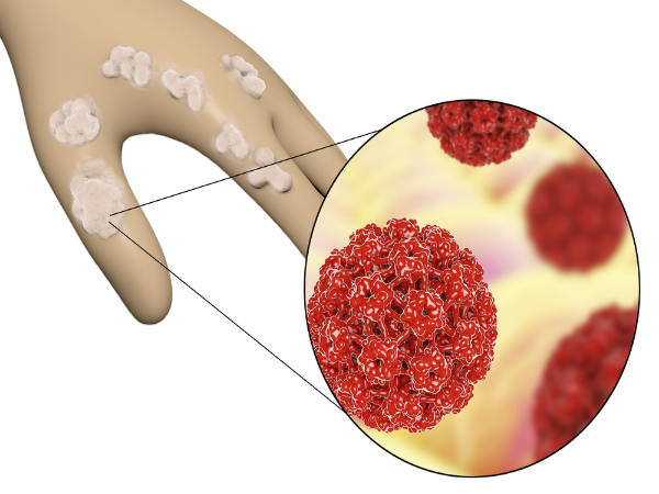 Can hpv virus affect pregnancy, HPV & Cancer cancer biliar en ingles