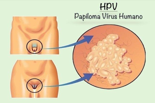 hpv genital imagens