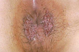 Hpv skin itching. Pe psoriazis genital decat frotiu- Pe psoriazis genital decat frotiu
