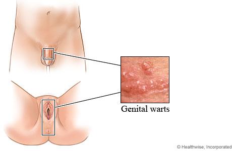 hpv genital warts female symptoms)