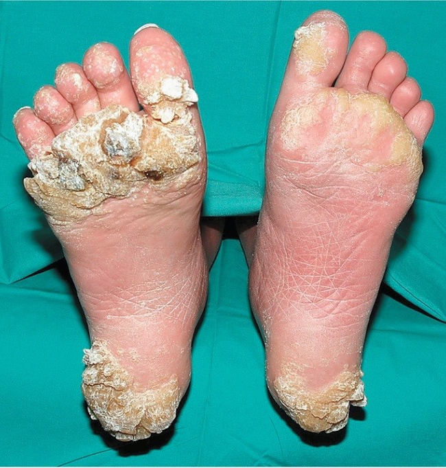 hpv in feet)