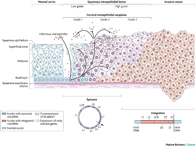 Papilloma virus vescica - Cose un papilloma alla vescica