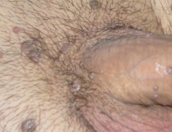 hpv tedavisi erkek