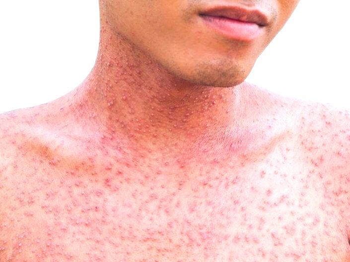 hpv virus man behandeling