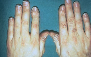 hpv virus warts on hands