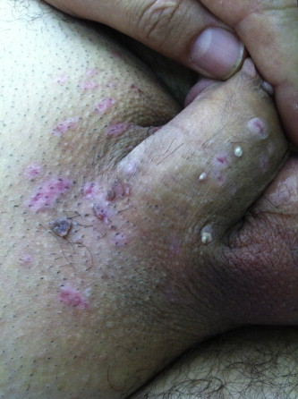 hpv warts after treatment)