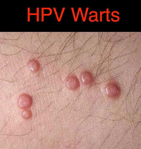 hpv warts genital)