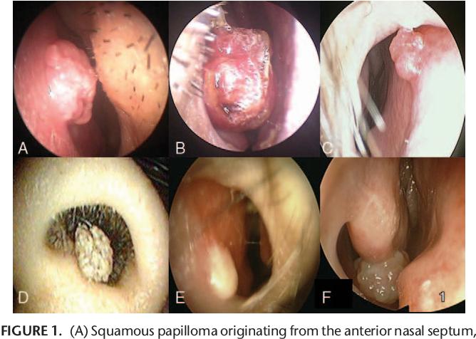 infection papillomavirus bouche