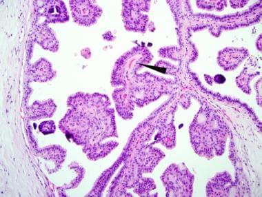 Multiple intraductal papillomas treatment