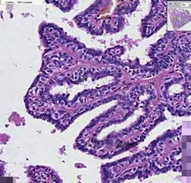 Intraductal papilloma diagnosis REVIEW-URI