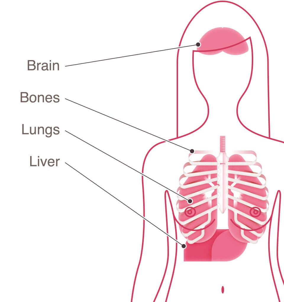 Prostate cancer metastatic bone pain Leucocite crescute și prostate