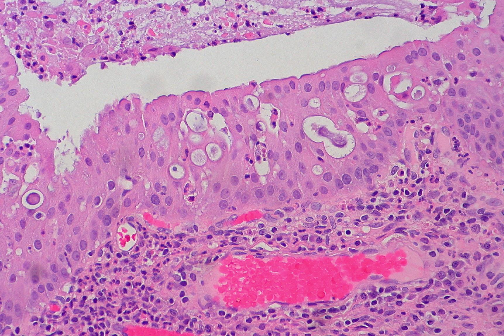 Nasal transitional cell papilloma
