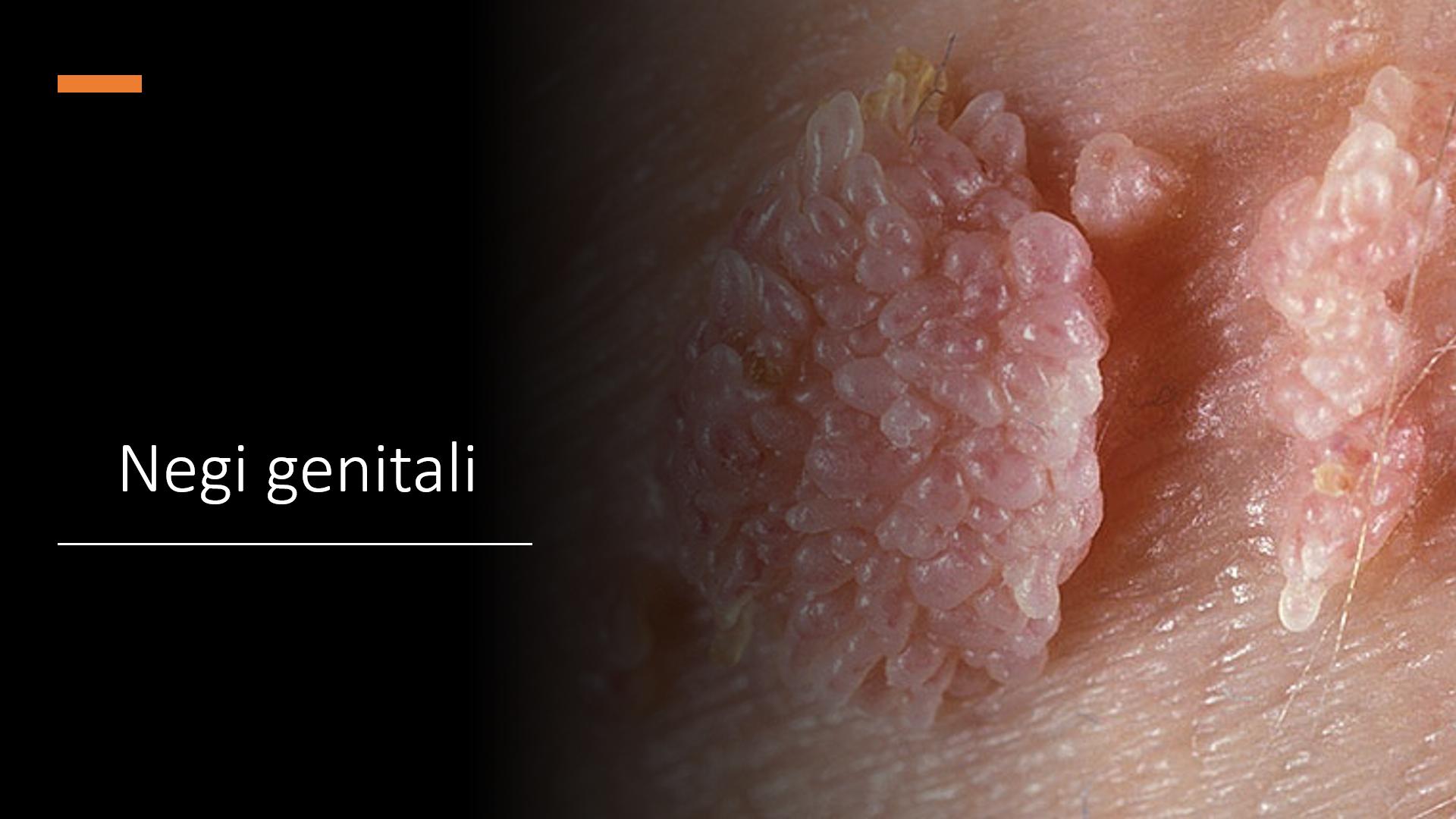 negii genitali se transmit anemia workup