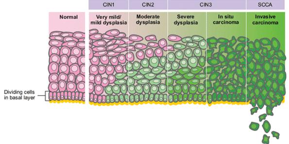 neoplasia papilloma virus)