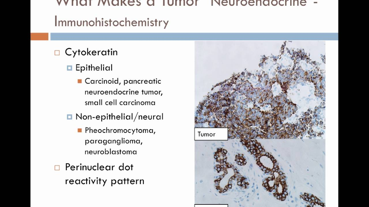 neuroendocrine cancer usmle)