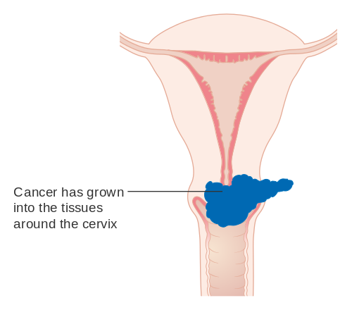 ovarian cancer from hpv