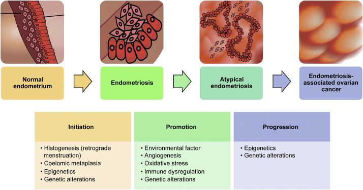 ovarian cancer or endometriosis