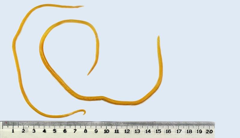 Oxiurus vermes que saem nas fezes humanas, O que e oxiurose resumo, Viermi - lambli