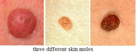 papilloma and warts)