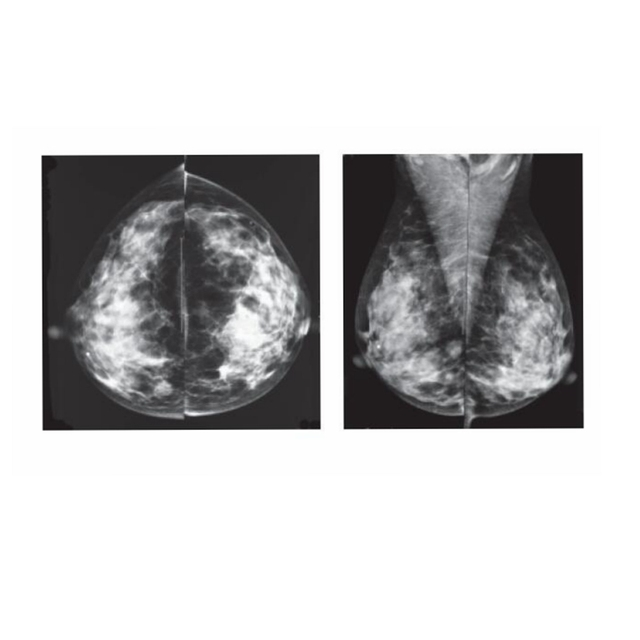 papilloma on x ray