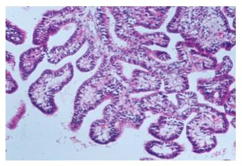 papilloma plexus choroideus)