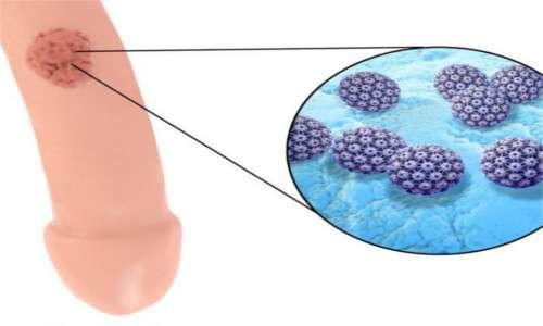 papilloma virus nell uomo bocca