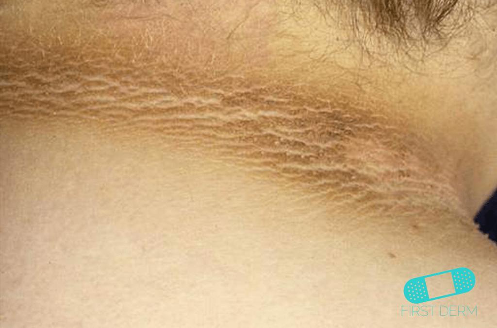 Papillomatosis cutis icd 10. Icd 10 code intraductal papilloma breast