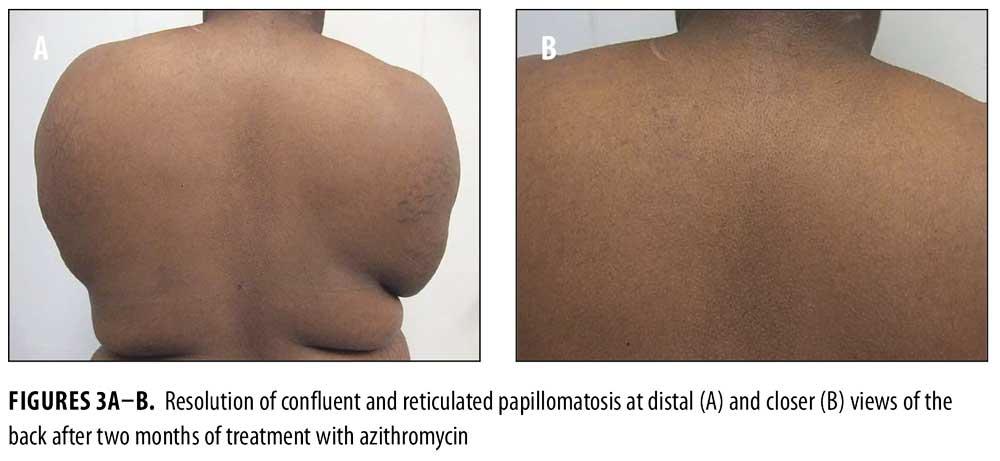 papillomatosis skin rash)