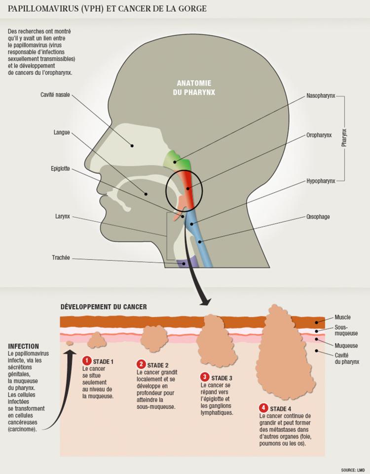 papillomavirus homme cancer gorge