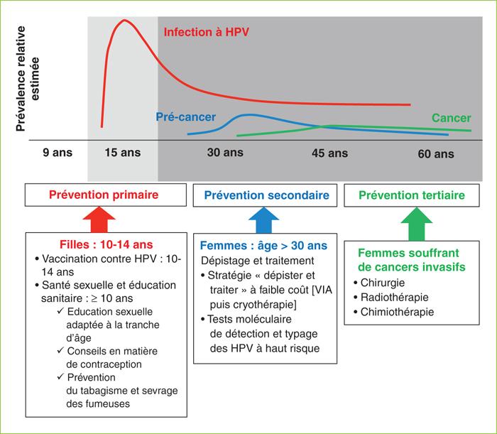 papillomavirus niveau 3 condiloame în uter
