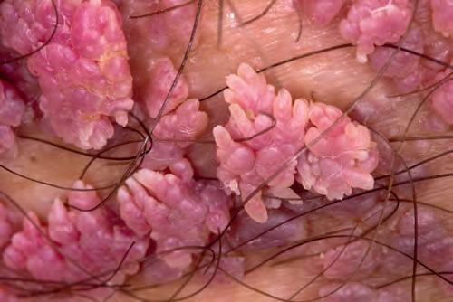 papiloame ale condiloamelor la femei în medicină gegen giardien bei katzen