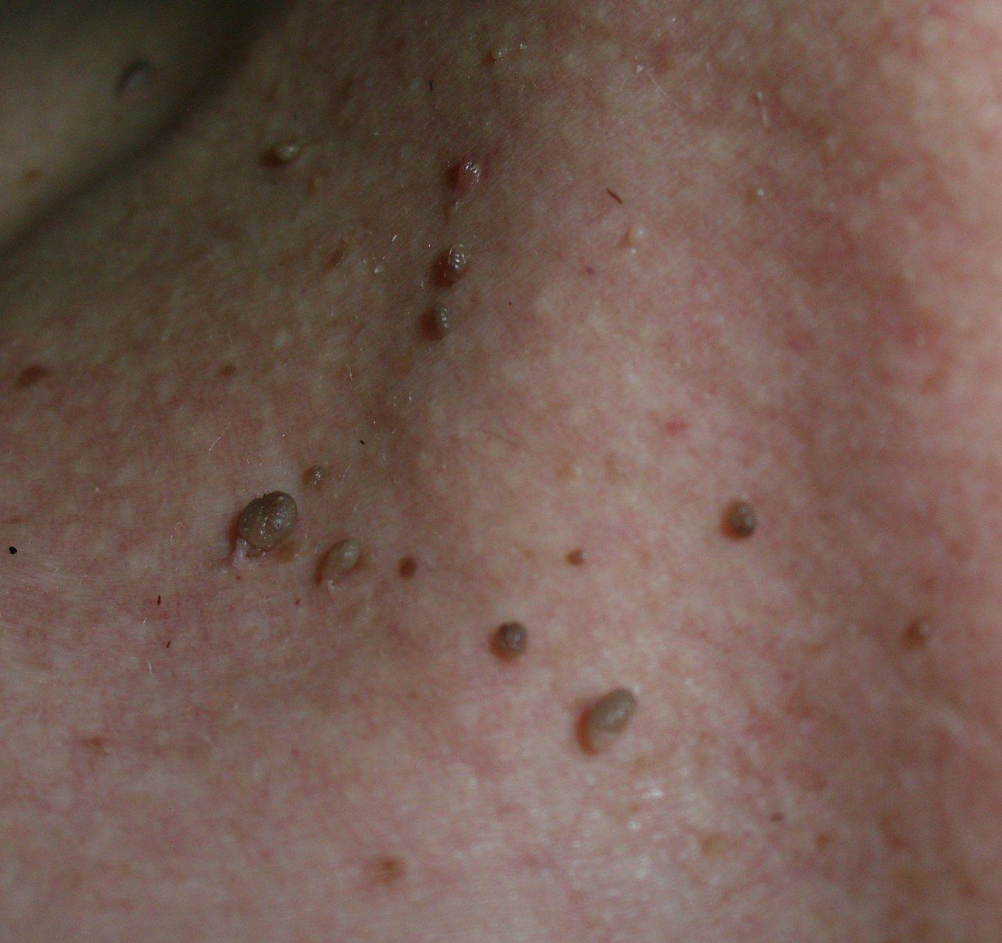 Virusul papiloma uman – înlăturarea condiloamelor şi papiloamelor