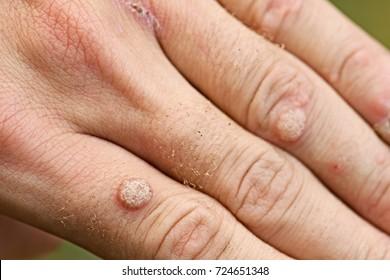 condilom wartner anemia x ray