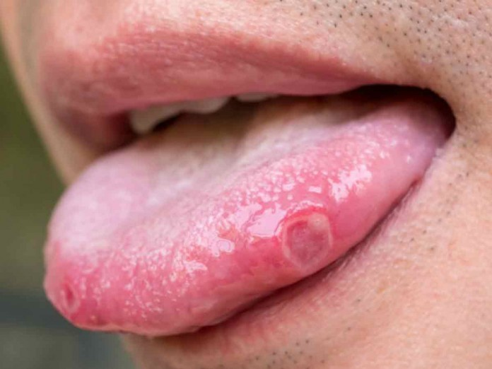 papiloma en la boca