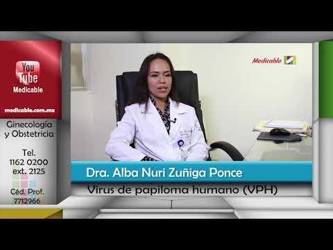 papiloma fibroepitelial cie 10)