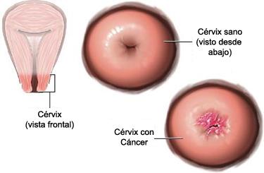 papiloma se transmite con preservativo)